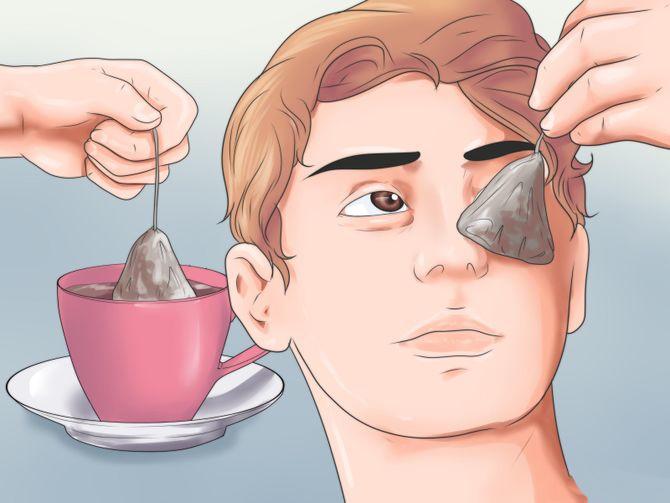 הניחו שקיות תה על העיניים