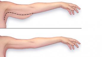 איך להיפטר מהר מהשומן בזרוע העליונה?