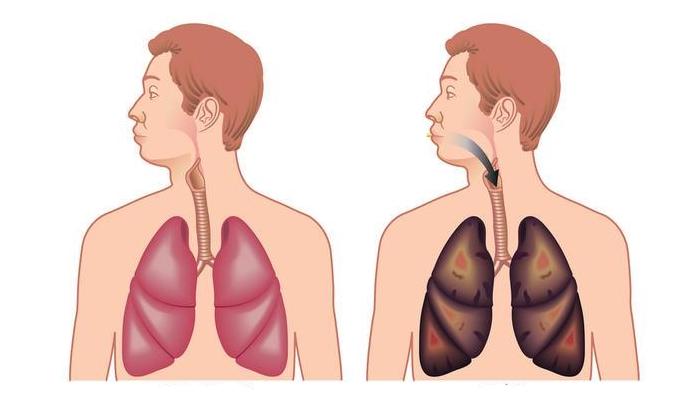 ריאות