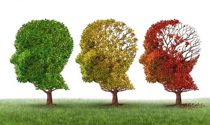 מחלת אלצהיימר