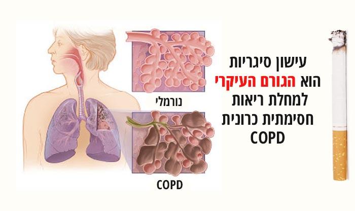 מחלת ריאות חסימתית כרונית